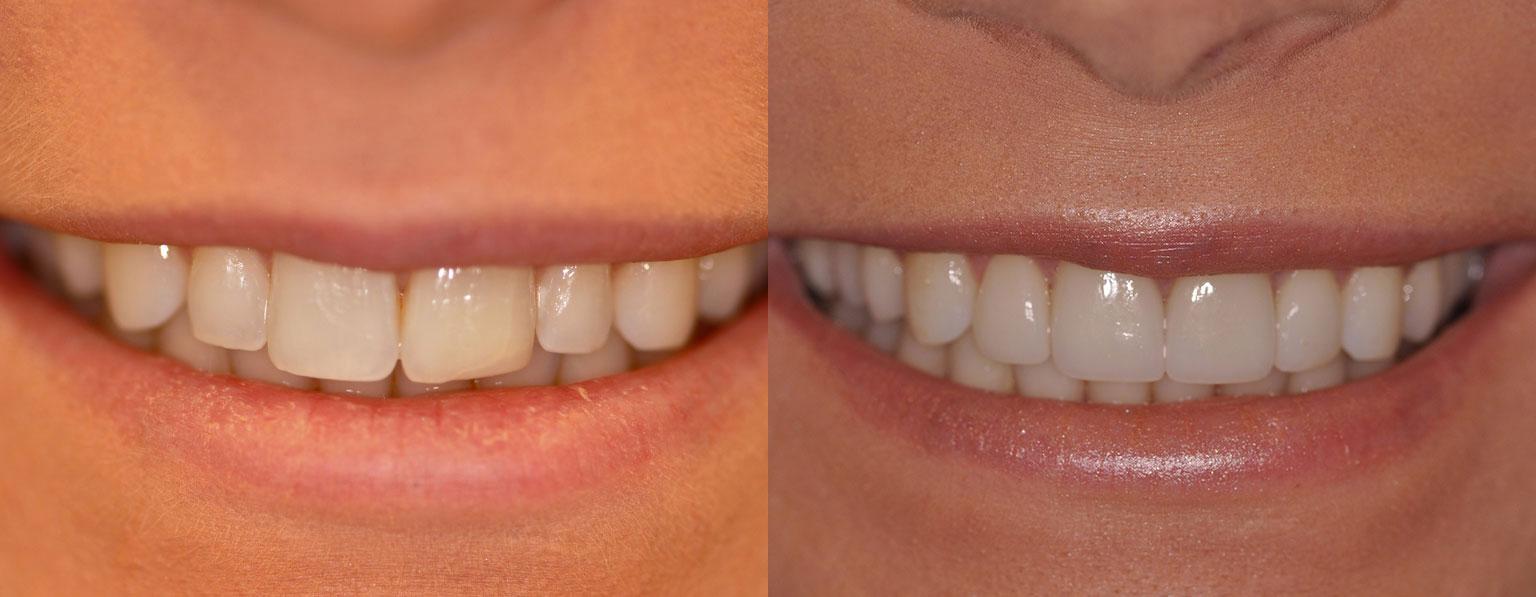 Before & After Porcelain Veneers