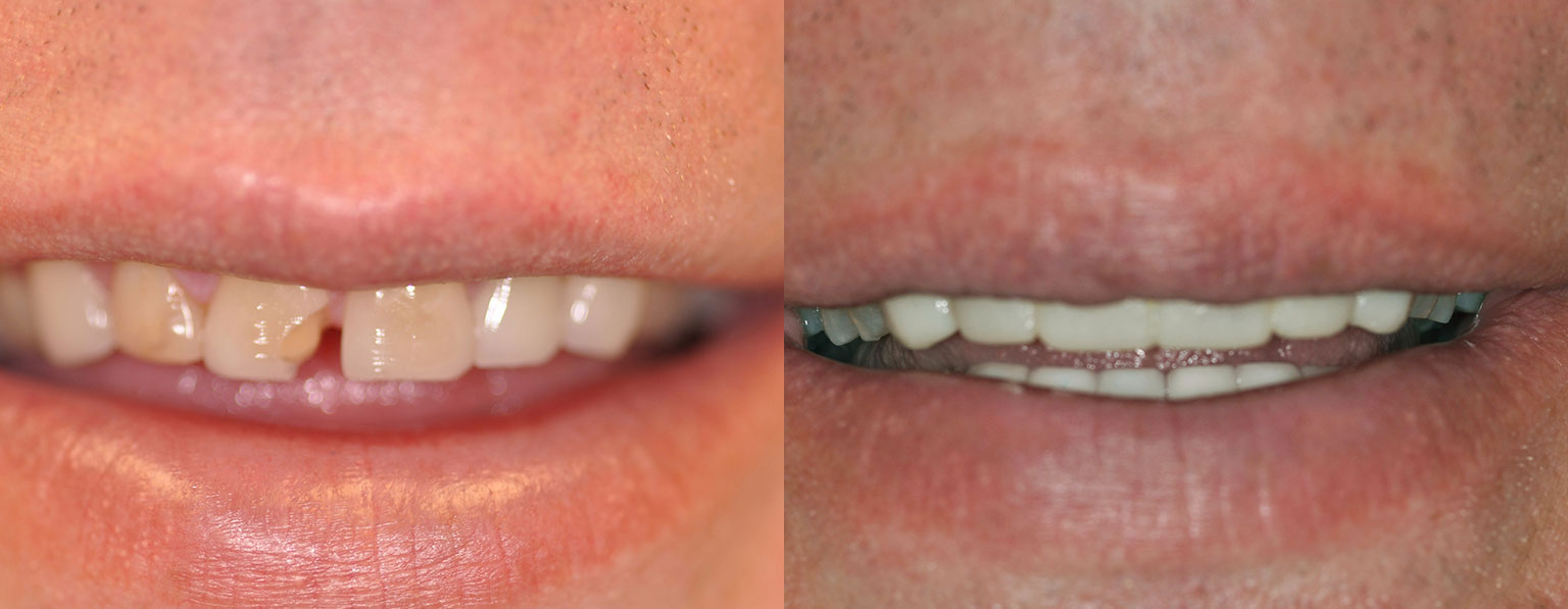 Before & After Anterior Crowns
