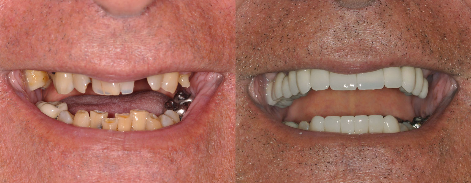 Before & After Full Mouth Smile Makeover