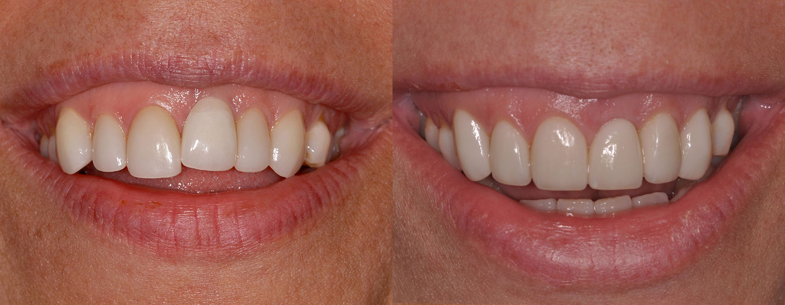 Before & After PatientPorcelain Veneers and Dental Implant Crown