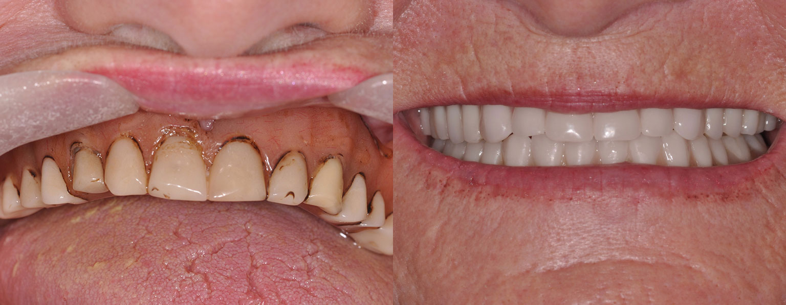 Before & After New Upper and Lower Dentures