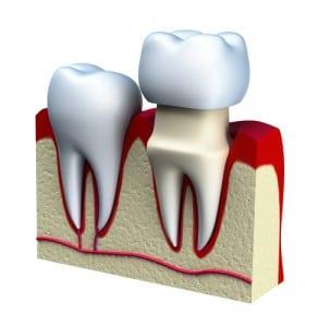 Dental crown installation process,