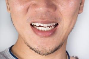 Teeth Injuries or Teeth Breaking in Male