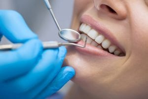 Dentist examining a patient teeth in the dentist-img-blog