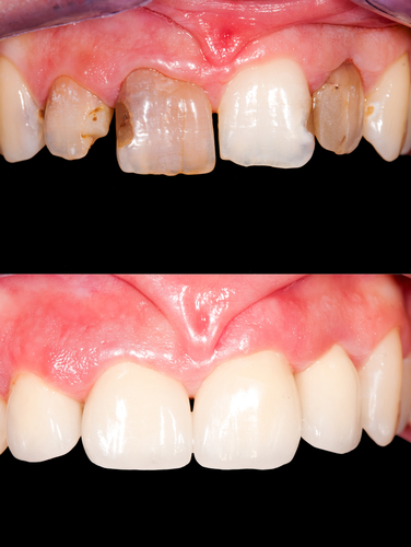 frontal teeth restoration with ceramic crowns, before- after-img-blog