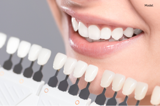 matching the shades of the implants or the process of teeth whitening-img-blog