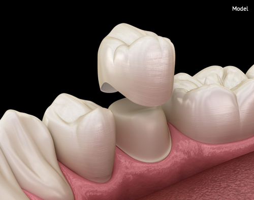 dental crown premolar tooth assembly process