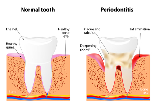 Image of a normal, healthy tooth compared to a tooth affected by periodontitis-img-blog