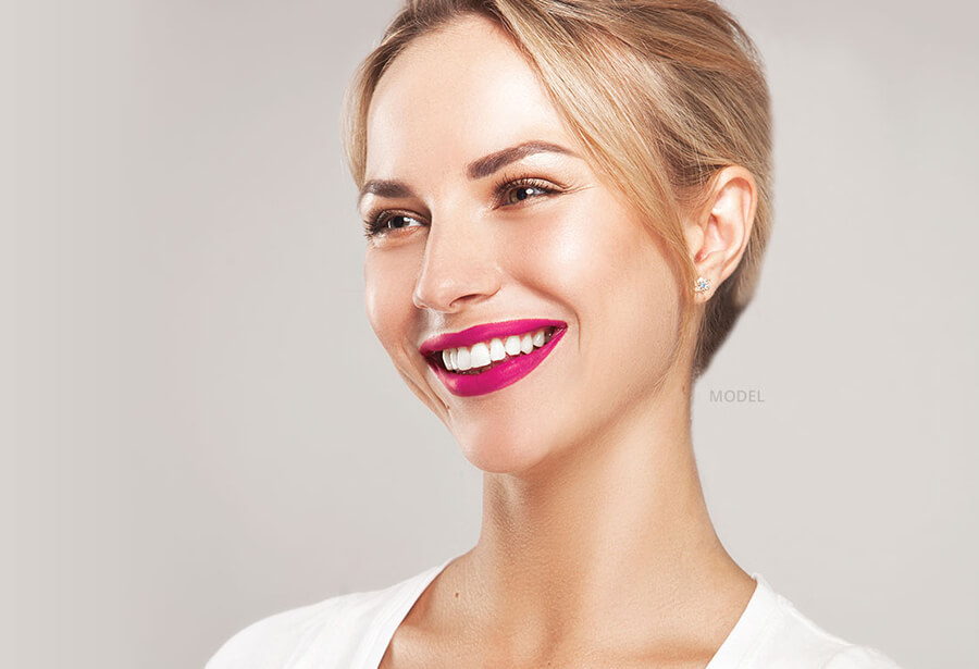 smile makeover model